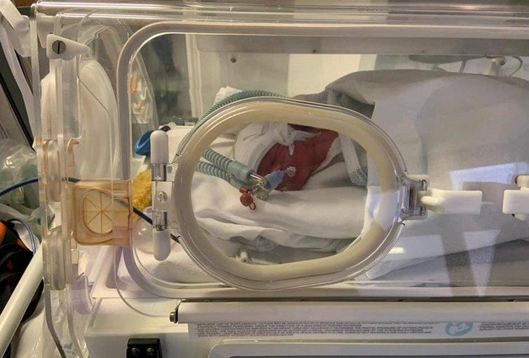 COVID-19 ir nėštumas: gresia komplikacijos ir 20 kartų didesnė mirtingumo tikimybė (nuotr. SCANPIX)