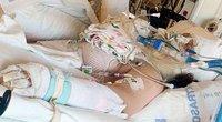 """13-metei """"TikTok"""" iššūkis baigėsi tragiškai: nudegė kūną ir nebevaldo rankos (nuotr. facebook.com)"""