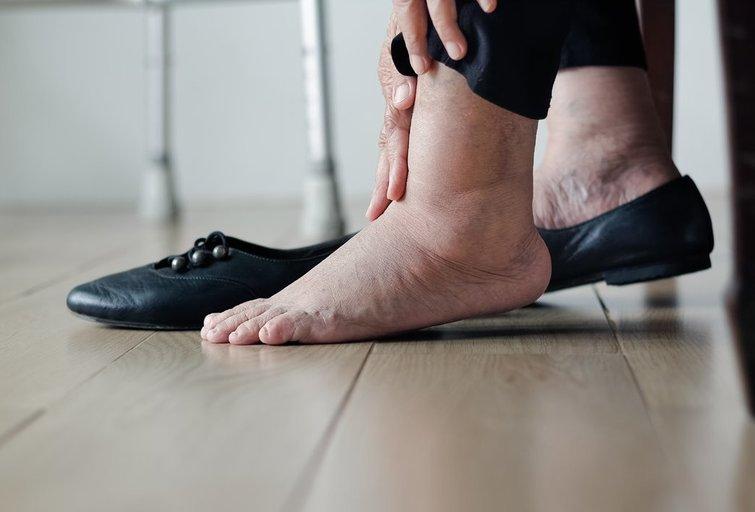 Patinusios kojos (nuotr. Shutterstock.com)