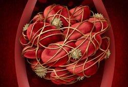 Kraujo krešulius gali išduoti aiškūs ženklai: įsidėmėkite juos
