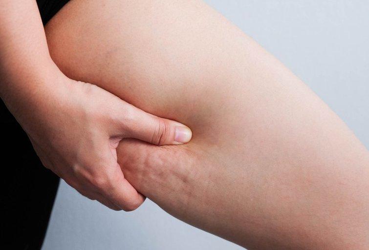 Plačios kojos  (nuotr. Shutterstock.com)