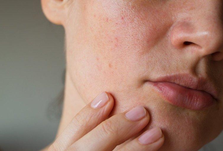Išbertas veidas  (nuotr. Shutterstock.com)