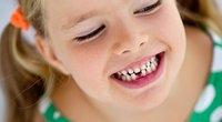 Pieniniai dantys (nuotr. Shutterstock.com)