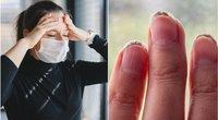 Kaunietė įspėja manikiūro namuose mėgėjas – nagai gali tiesiog supelyti (tv3.lt fotomontažas)