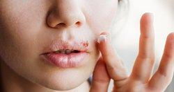 Gydytoja perspėja: lūpų pūslelinė praneša apie organizmo patiriamą stresą
