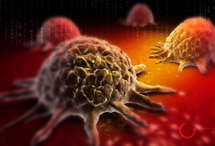 Vėžys  (nuotr. 123rf.com)