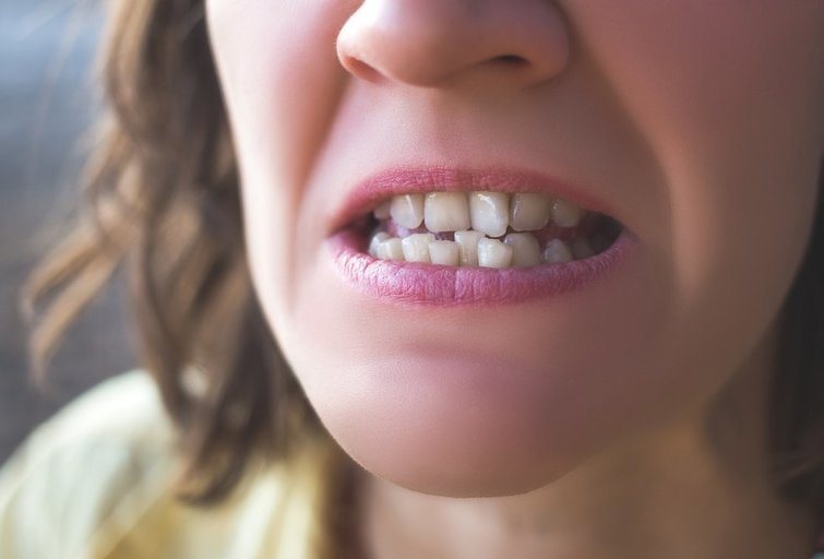 Kreivi dantys (Nuotr. shutterstock.com)