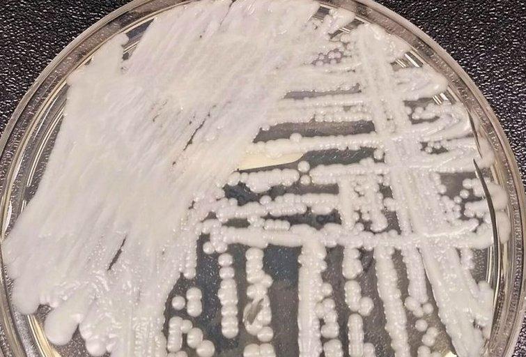 """COVID-19 pacientams nustatytas keliems antibiotikams atsparus """"super grybelis"""" (nuotr. SCANPIX)"""