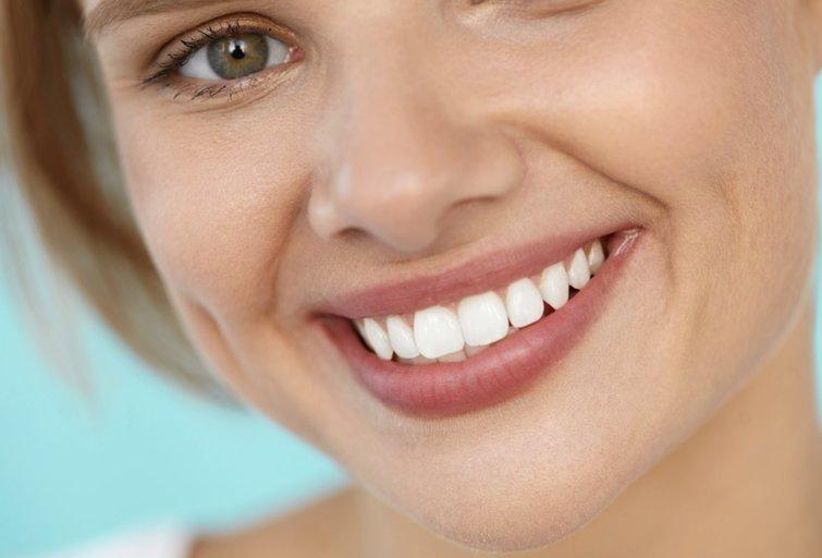 Balta šypsena