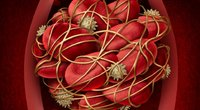 Kraujo krešulys  (nuotr. Shutterstock.com)