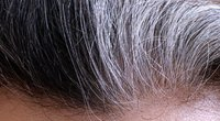 Žili plaukai (nuotr. 123rf.com)