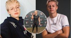 Vilnietė įspėja visus lietuvius: klastingos ligos ženklus nurašydavo paauglystei