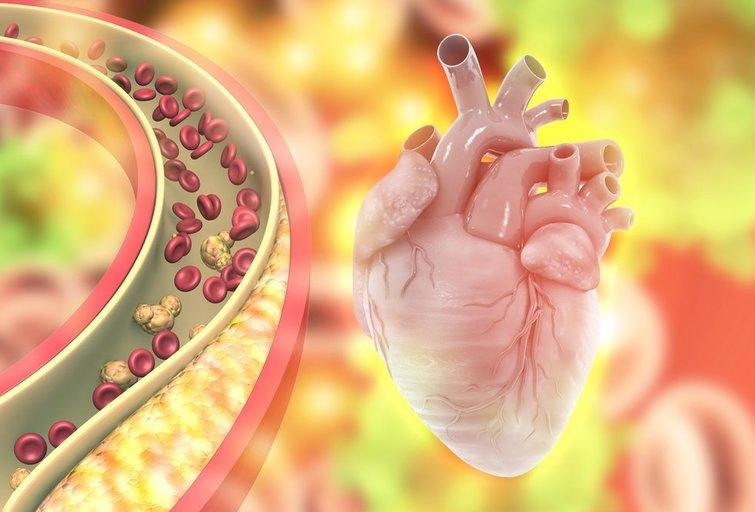 Padidėjęs cholesterolis (nuotr. Shutterstock.com)