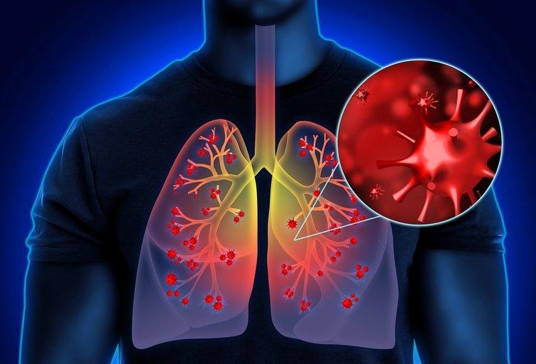 Plaučių uždegimas  (nuotr. Shutterstock.com)