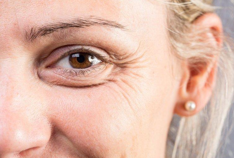 Raukšlės  (nuotr. Shutterstock.com)
