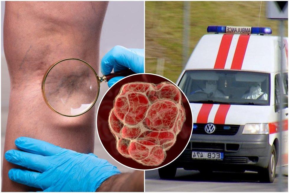 Įsidėmėkite visam laikui: specialistė paaiškino, kas išduoda susidariusius kraujo krešulius