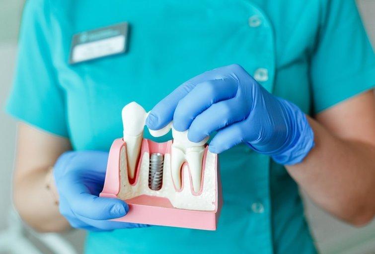 Dantų implantai (nuotr. Shutterstock.com)