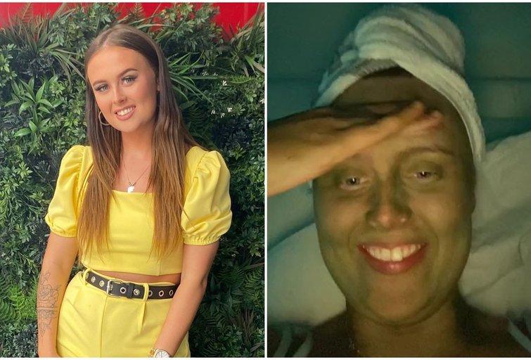 20-metė parodė, ką jai padarė odos kremas: dabar įspėja kitas (tv3.lt fotomontažas)