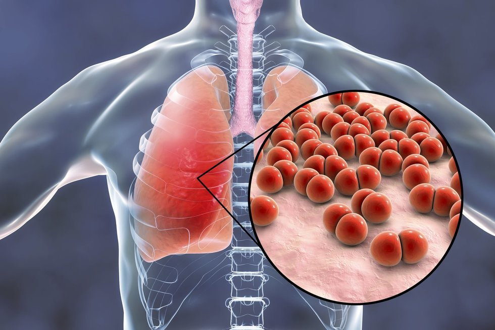 Pneumonija plaučiuose (Nuotr. spaudos pranešimo)
