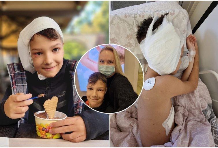 Iki sąmonės netekimo šuns kandžiotas berniukas sulaukė stebuklo: 10-mečiui atlikta antroji ausų atkūrimo operacija (tv3.lt fotomontažas)