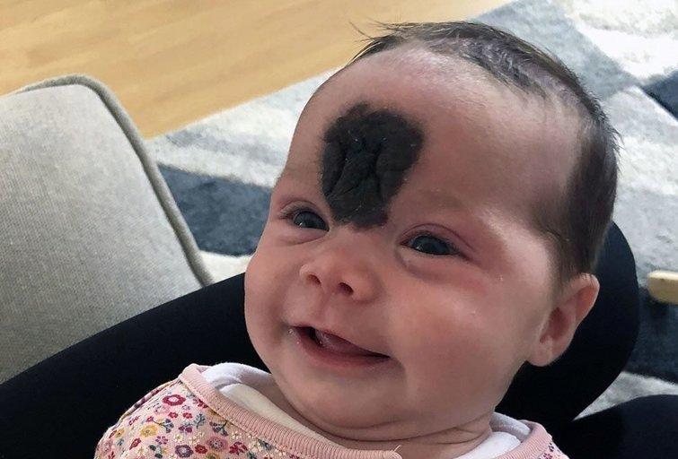Mergaitė gimė su dideliu apgamu ant veido
