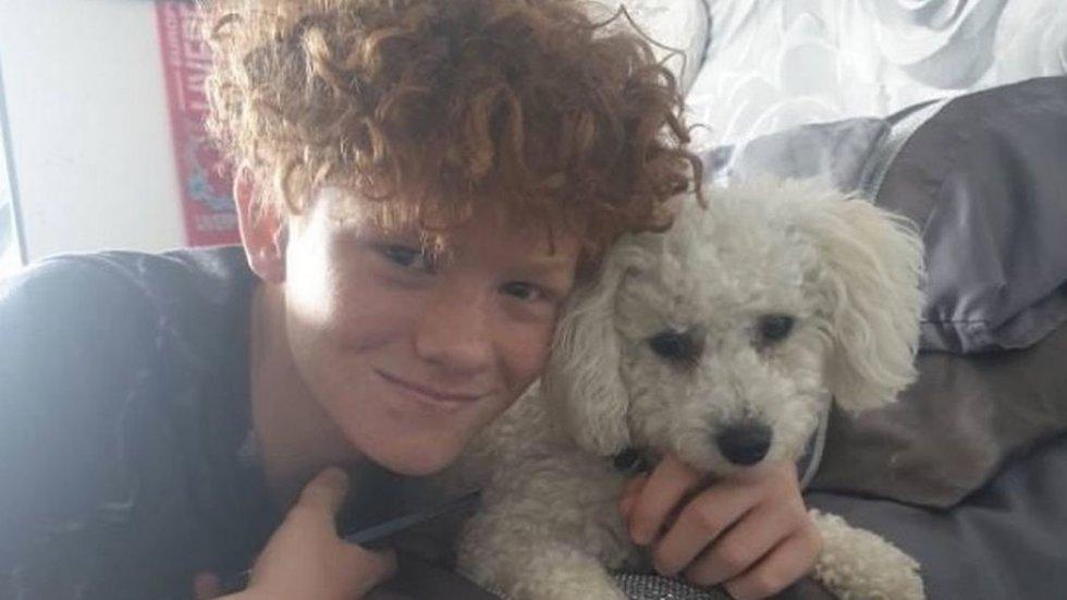 12-metį ištiko žaibinė alerginė reakcija