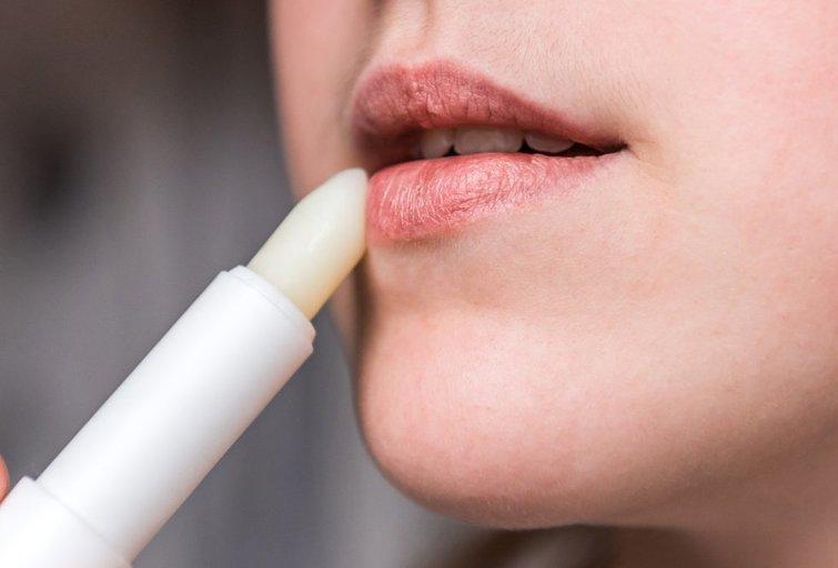 Sausos lūpos (nuotr. Shutterstock.com)