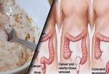 2 produktai pašalins nuodus iš organizmo: pavyks išvengti net vėžio