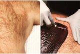 Skauda net žiūrėti: itin plaukuotas vyras ryžosi depiliacijai