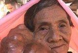 Milžiniškas auglys kasdien didėja ant moters veido: operacijos atsisako