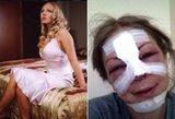 Rusiją šokiravo pop žvaigždę suniokojusių plastinių operacijų vaizdai