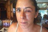 """Tragedija: draugės """"pagalba"""" moteris susiklijavo akį"""