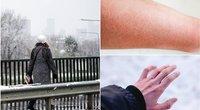 Vilnietė įspėja: žiemą tokių drabužių geriau nesirinkite (nuotr. fotodiena/shutterstock)