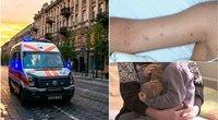 Atvėsums orams, medikai primena apie meningokokinę infekciją  (tv3.lt fotomontažas)