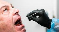 Jeigu visiškai dingo kvapo ir skonio pojūtis – suskubkite tirtis dėl koronaviruso (nuotr. SCANPIX)