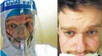 """Beveik pusę paros nešioto respiratoriaus """"paženklintas"""" veidas (Nuotr. darbs.lt)"""