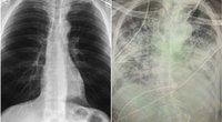 Sveiki plaučiai ir koronavirusu sirgusio paciento plaučiai (nuotr. facebook.com)