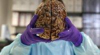Mokslininkai aptiko smegenų sritį, kurią pažeidus išauga religingumas (nuotr. SCANPIX)