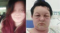 Leonie Dee buvo paguldyta į ligoninę po bandymo plaukus nusidažyti namuose  (nuotr. facebook.com)