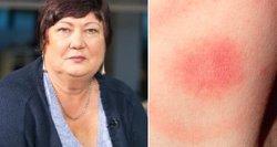 Gydytoja perspėja lietuvius: ši dėmė išduoda agresyvią ligą