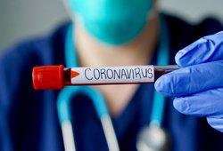 Įsidėmėkite visam laikui: šie simptomai atskleidžia COVID-19 virusą
