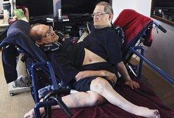 Mirė ilgiausiai išgyvenę Siamo dvyniai: atskleista mirties priežastis