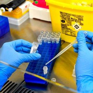 Lietuvoje per parą patvirtinta dar 12 naujų koronaviruso atvejų