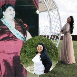 Žiežmarietė atsikratė 100 kilogramų: draugė nepatikėjo, kad tai tas pats žmogus