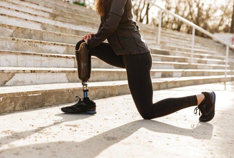 Lietuvoje pacientams ribojamas protezų tipo pasirinkimas.