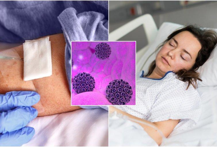 Gimdos kaklelio vėžys (nuotr. Shutterstock.com)