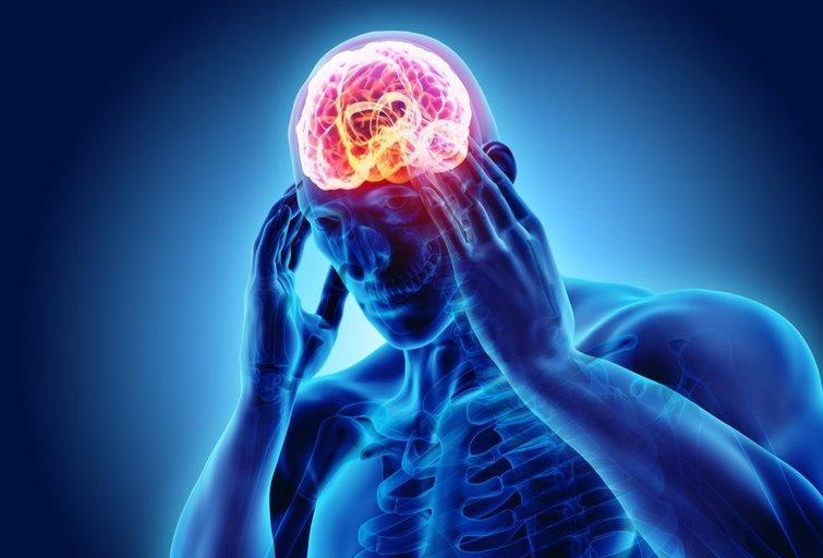 Galvos skausmas  (nuotr. Shutterstock.com)