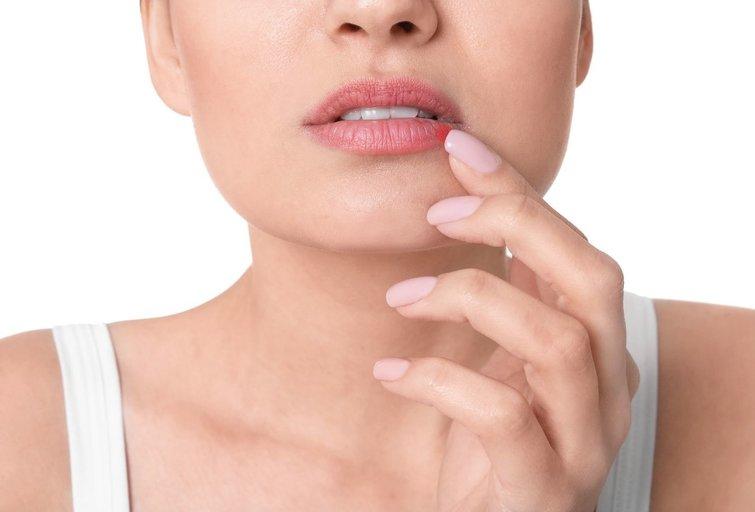 Lūpų pūslelinė (nuotr. 123rf.com)