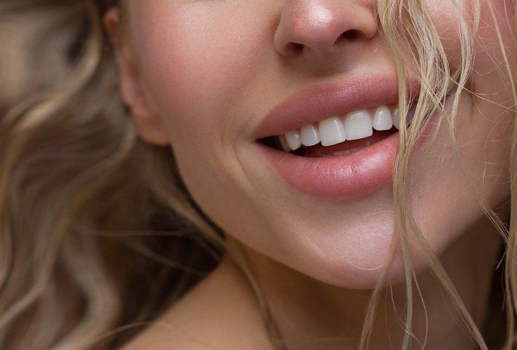 Lūpos (nuotr. Shutterstock.com)