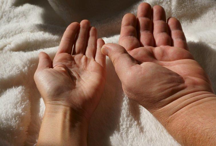 Akromegalija (nuotr. Shutterstock.com)